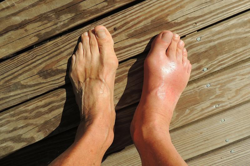 Gota y otras artropatías microcristalinas